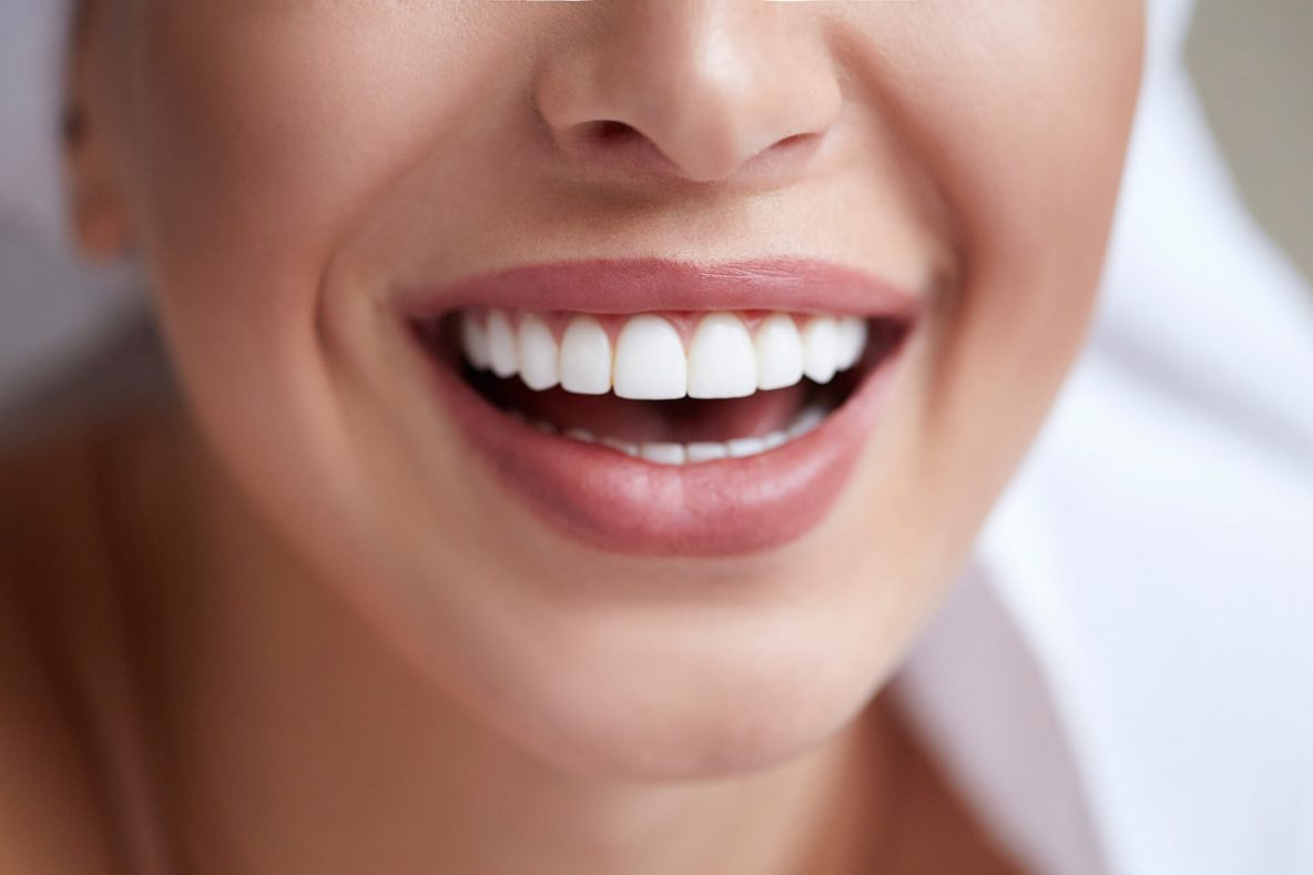 Whiten Your Teeth For The Best Smile Possible